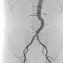 Peripheral Angiography