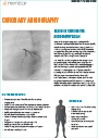 Mentice-Coronary-Angiography-product-sheet-thumbnail