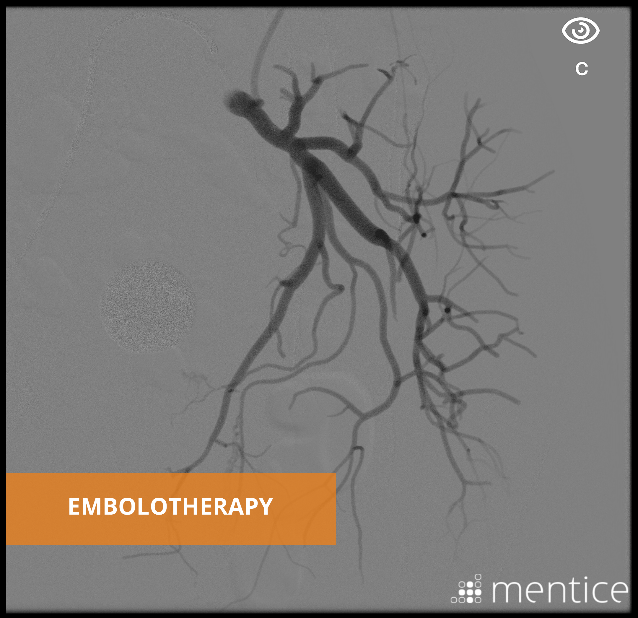 embolotherapy